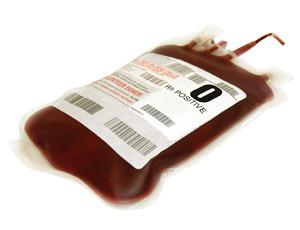 transfusion_cardiac_patients